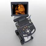 婦人科用超音波画像診断装置の写真