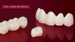 Caps Crown and Bridge Treatment Providers (Ratra Dental) Tags: caps crown bridge