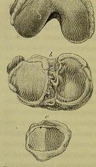 This image is taken from Page 170 of Traité de lâÂÂherpétisme (Medical Heritage Library, Inc.) Tags: herpes simplex herpesviridae infections rcpedinburgh ukmhl medicalheritagelibrary europeanlibraries date1883 idb21984025