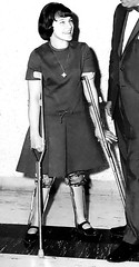 Well Braced and Happy polio girl (jackcast2015) Tags: handicapped disabledwoman crippledwoman wheelchair paralysed poliogirl legbraces calipers polio