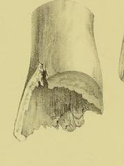 hemisphere image