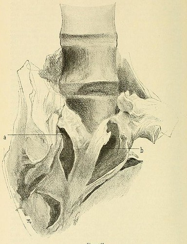 This image is taken from Page 54 of Beiträge zur Klinik der Rückenmarks- und Wirbeltumoren
