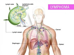 What You Need To Know About Lymphoma (katalaynet) Tags: follow happy me fun photooftheday beautiful love friends