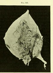 This image is taken from Page 567 of An American textbook of gynecology [electronic resource] : medical and surgical, for practitioners and students (Medical Heritage Library, Inc.) Tags: gynecology wellcomelibrary ukmhl medicalheritagelibrary europeanlibraries date1894 idb20412460