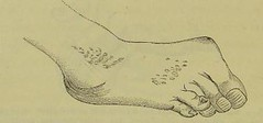 This image is taken from Page 164 of Traité de lâÂÂherpétisme (Medical Heritage Library, Inc.) Tags: herpes simplex herpesviridae infections rcpedinburgh ukmhl medicalheritagelibrary europeanlibraries date1883 idb21984025