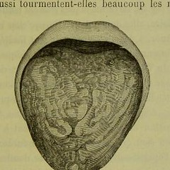 This image is taken from Page 125 of Traité de lâÂÂherpétisme (Medical Heritage Library, Inc.) Tags: herpes simplex herpesviridae infections rcpedinburgh ukmhl medicalheritagelibrary europeanlibraries date1883 idb21984025