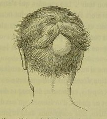 This image is taken from Page 107 of Traité de lâÂÂherpétisme (Medical Heritage Library, Inc.) Tags: herpes simplex herpesviridae infections rcpedinburgh ukmhl medicalheritagelibrary europeanlibraries date1883 idb21984025