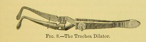This image is taken from Page 89 of Diphtheria : its nature and treatment : with special reference to the operation, after-treatment, and complications of tracheotomy