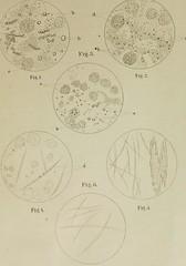 This image is taken from Zur Therapie der Variola vom Standpunkte der Micrococcuslehre ... Mit einer Tafel (Medical Heritage Library, Inc.) Tags: smallpox pathogenic microorganisms medicalheritagelibrary cushingwhitneymedicallibrary americana date1880 id39002086346864medyaleedu