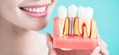 images (1) (dentalimplant66) Tags: dental implants nj new jersey prices