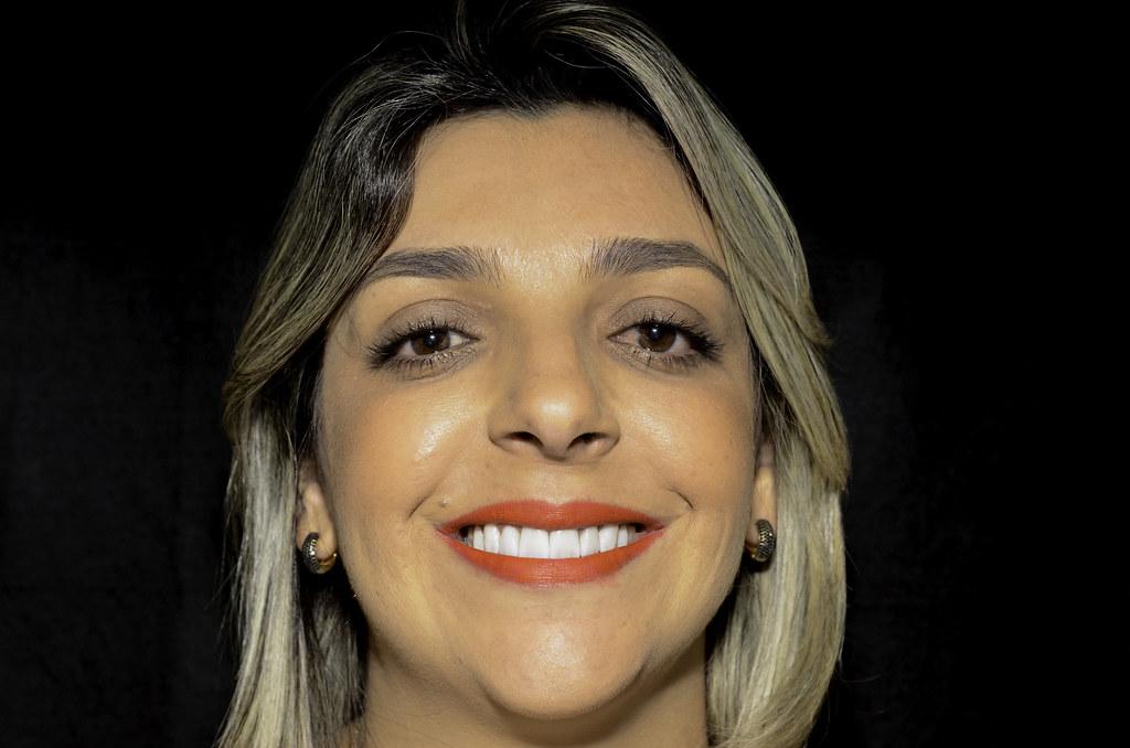 Clínica Odonto Cabral - Paciente Josi - Pós-tratamento - Fotos Filipe Diniz -33 a1537d53cd