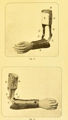 This image is taken from Page 19 of On the application of suitable mechamism to a case of amputation of both hands [electronic resource] (Medical Heritage Library, Inc.) Tags: amputation hand wellcomelibrary ukmhl medicalheritagelibrary europeanlibraries date1893 idb20408468