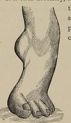 This image is taken from Contributions to orthopedic surgery : including observations on the treatment of chronic inflammation of the hip, knee, and ankle joints, by a new and simple method of extension, the physiological method : and lectures on club-foo (Medical Heritage Library, Inc.) Tags: arthritis immobilization lower extremity clubfoot usnationallibraryofmedicine medicineintheamericas medicalheritagelibrary americana date1880 id65160920rnlmnihgov