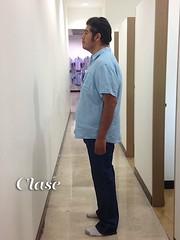 El nuevo procedimiento para bajar de peso sin cirugía