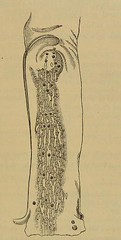 hypochromic image