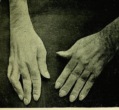 This image is taken from The Tallerman treatment by superheated dry air in rheumatism, gout, rheumatic arthritis, stiff and painful joints, sprains, sciatica, and other affections : case notes and medical reports with numerous illustrations (Medical Heritage Library, Inc.) Tags: rheumatic diseases arthritis heat medicalheritagelibrary cushingwhitneymedicallibrary americana date1898 id39002086176915medyaleedu