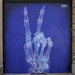x-ray hand sign - MasterPeace by SHOK-1