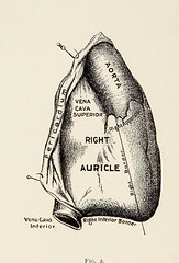 This image is taken from Asthma, recent developments in its treatment (Medical Heritage Library, Inc.) Tags: asthma rcpedinburgh ukmhl medicalheritagelibrary europeanlibraries date1899 idb21691010