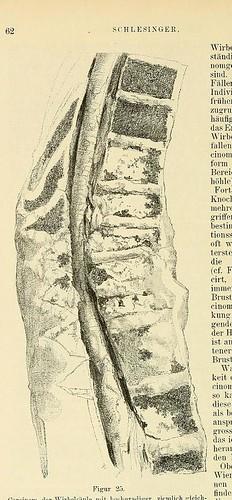 This image is taken from Page 62 of Beiträge zur Klinik der Rückenmarks- und Wirbeltumoren
