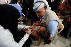 أكثر من 12 ألف طفل مصاب بالجدري في اليمن خلال العام الماضي (nashwannews) Tags: أمانةالعاصمة الصحةالعالمية اليمن صنعاء مرضالجدري