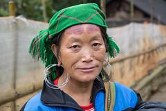 Hmong Woman With Headaches (cheryl strahl) Tags: vietnam asia northernvietnam blackhmong hmong tribalcustom tribal sapa machavillage macha ethnic headaches waterbuffalo horns pain burn circle forehead