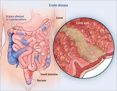 Are Probiotics Good or Bad for Crohn's Disease? (katalaynet) Tags: follow happy me fun photooftheday beautiful love friends