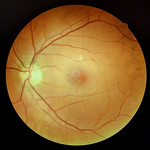 Planet Retina thumbnail