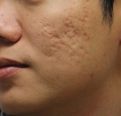 Causes of Acne scars (nehasharma.bssi) Tags: health beauty home remedies remedy acne scar