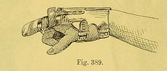 This image is taken from Lehrbuch der orthopädischen Chirurgie [electronic resource] (Medical Heritage Library, Inc.) Tags: orthopedics wellcomelibrary ukmhl medicalheritagelibrary europeanlibraries date1898 idb20401036
