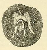 This image is taken from Page 74 of Beiträge zur Klinik der Rückenmarks- und Wirbeltumoren