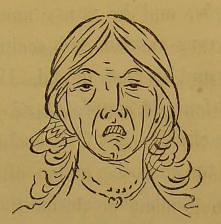 This image is taken from Page 83 of Shut your mouth (Medical Heritage Library, Inc.) Tags: mouth breathing wellcomelibrary ukmhl medicalheritagelibrary europeanlibraries date1869 idb28114383