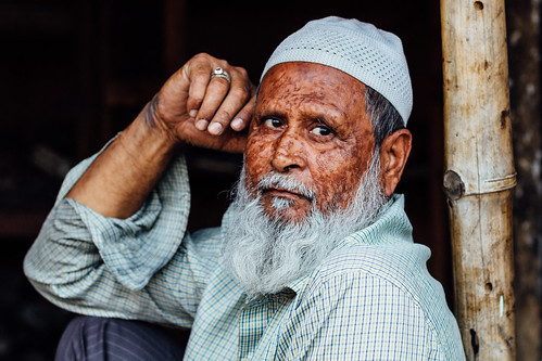 Man With Scarred Face Portrait, Etawah India